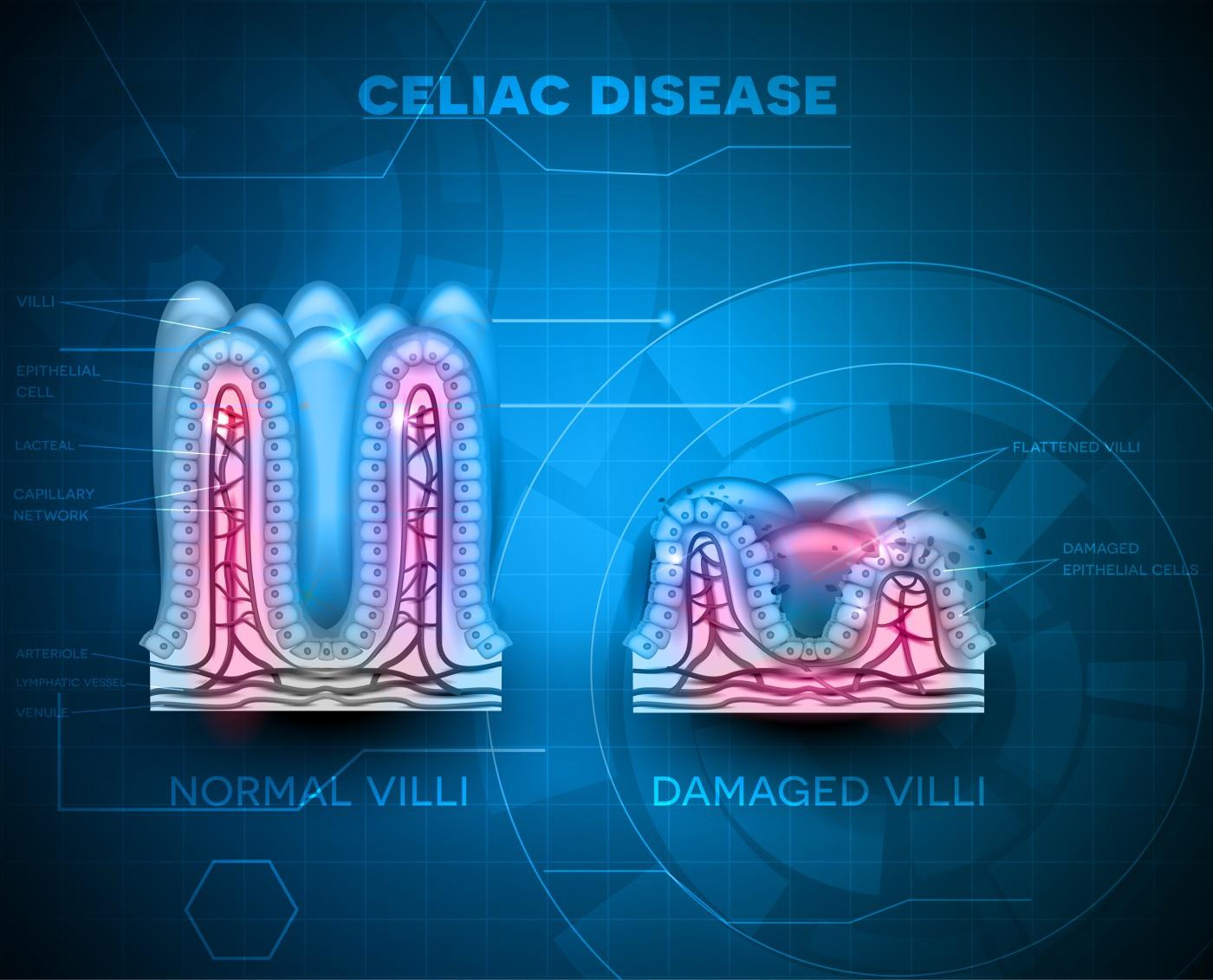 Kod celijakije dolazi do oštećenja resica u tankom crijevu.